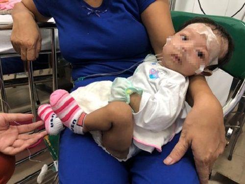 Cứu bé gái 2 tháng tuổi mắc bệnh hiếm gặp hình thành từ lúc bào thai - Ảnh 1