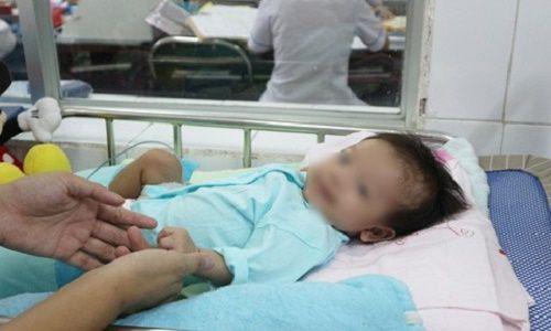 Cứu bé gái 2 tháng tuổi mắc bệnh hiếm gặp hình thành từ lúc bào thai - Ảnh 2