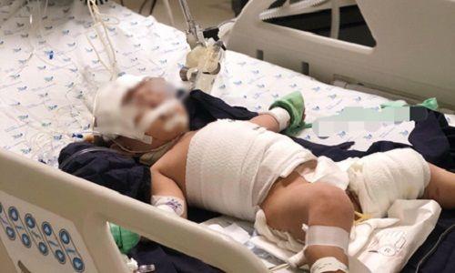 Đau lòng bé gái 20 tháng tuổi tróc da toàn thân bỏng nước sôi trong ấm đun siêu tốc - Ảnh 2