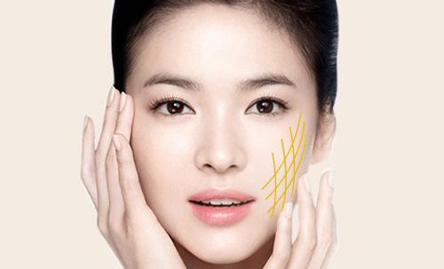 Căng da mặt chỉ vàng - Công nghệ làm đẹp nổi bật của Thẩm mỹ viện Phương Thúy - Ảnh 6