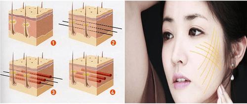 Căng da mặt chỉ vàng - Công nghệ làm đẹp nổi bật của Thẩm mỹ viện Phương Thúy - Ảnh 5