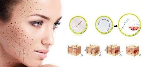 Căng da mặt chỉ vàng - Công nghệ làm đẹp nổi bật của Thẩm mỹ viện Phương Thúy - Ảnh 1