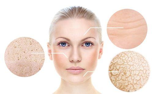 Tại sao da bắt đầu xuất hiện lão hóa ở độ tuổi 30 - Góc nhìn của bác sỹ viện thẩm mỹ D'Vincy - Ảnh 2