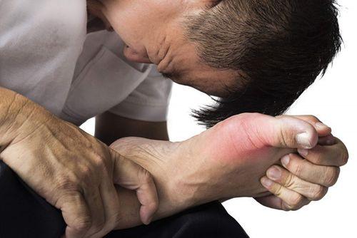 Cách phòng ngừa bệnh gout tái phát mùa lễ tết - Ảnh 1