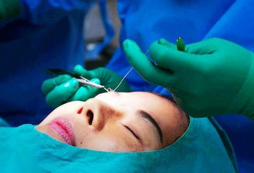 Điểm đặc biệt trong kỹ thuật cắt mí nâng cơ tại viện thẩm mỹ D'Vincy  - Ảnh 2