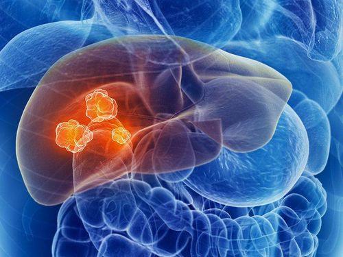 Phát hiện các dấu hiệu của bệnh ung thư gan càng sớm, hiệu quả điều trị càng cao - Ảnh 2
