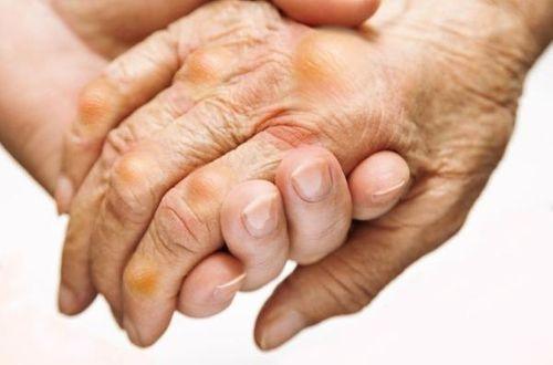 Bài thuốc dân gian chữa bệnh gút tại nhà - Ảnh 1