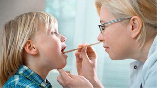 Bệnh viêm amidan – Nguyên nhân, triệu chứng và cách chữa hiệu quả tại nhà - Ảnh 1