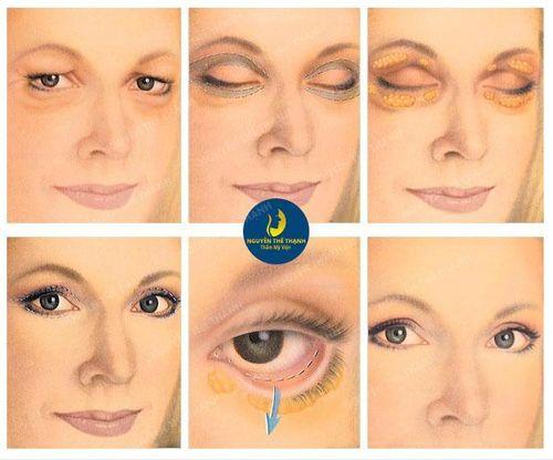 Lấy mỡ thừa mí mắt - Níu giữ tuổi thanh xuân - Ảnh 2