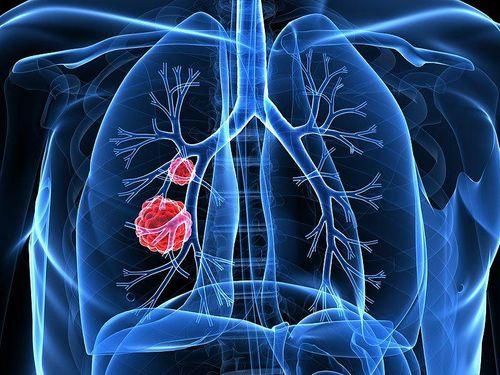 Bệnh nhân ung thư phổi giai đoạn 3 cần được chăm sóc như thế nào? - Ảnh 1