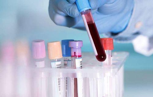 Ung thư máu - căn bệnh thường gặp ở trẻ em nhất - Ảnh 2