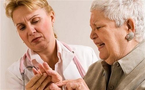 Bệnh viêm khớp dạng thấp có chữa khỏi không? - Ảnh 2