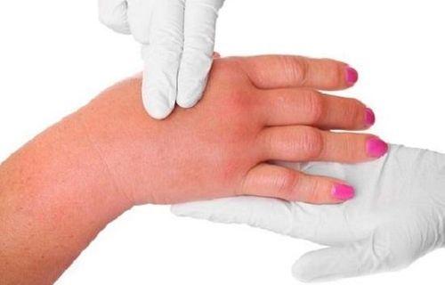 Bệnh viêm khớp dạng thấp có chữa khỏi không? - Ảnh 3