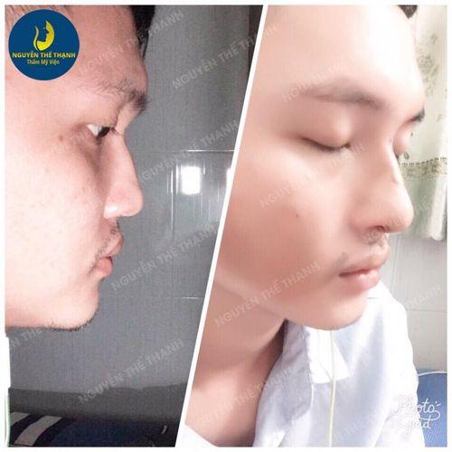 Gương mặt tỏa sáng hơn với ưu đãi 30% nhân dịp 8/3 tại thẩm mỹ viện bác sỹ Nguyễn Thế Thạnh - Ảnh 4