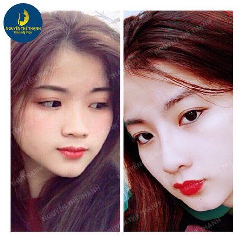 Gương mặt tỏa sáng hơn với ưu đãi 30% nhân dịp 8/3 tại thẩm mỹ viện bác sỹ Nguyễn Thế Thạnh - Ảnh 5