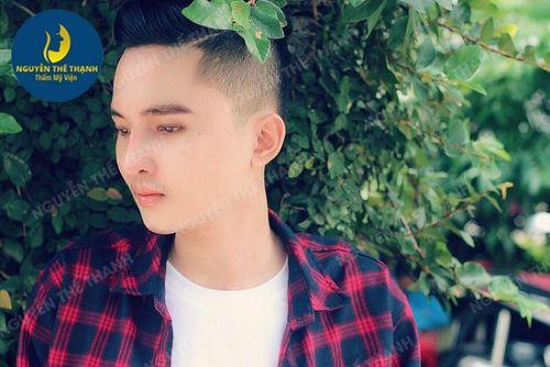 Nâng mũi Hàn Quốc - giải pháp cho chiếc mũi hoàn hảo mọi góc nhìn - Ảnh 4