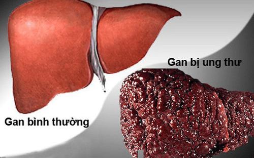Liệu bạn có nằm trong kiểu người dễ mắc bệnh ung thư gan không? - Ảnh 1