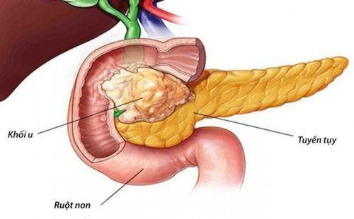 Ung thư tuyến tụy: Đừng bỏ qua dù chỉ là những biểu hiện nhỏ nhất - Ảnh 1