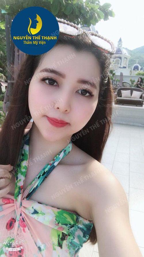 Độn cằm Vline - Khuôn mặt đẹp tự nhiên thanh tú như sao Hàn - Ảnh 2
