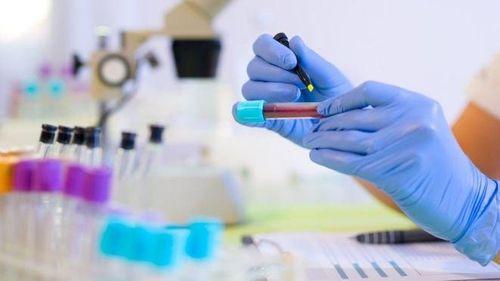 Hãy gặp bác sỹ làm các xét nghiệm ung thư sau để phát hiện bệnh sớm - Ảnh 1