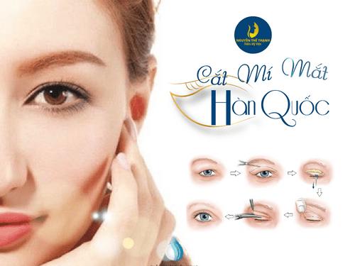 Bạn đã hiểu gì về công nghệ cắt mí mắt tại Hàn Quốc? - Ảnh 1