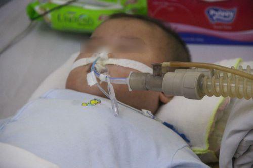 TP. HCM: Số trẻ nhập viện vì tay chân miệng tăng gấp 5 lần - Ảnh 3