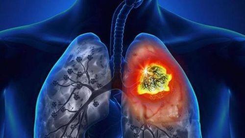 Cô gái 25 tuổi mắc ung thư phổi vì 10 năm đứng trong bếp liên tục - Ảnh 3