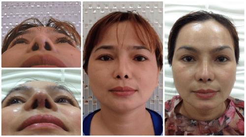 Viện Thẩm mỹ bác sĩ Lê Văn Sẽ: Địa chỉ cứu cánh của những ca phẫu thuật hỏng - Ảnh 3