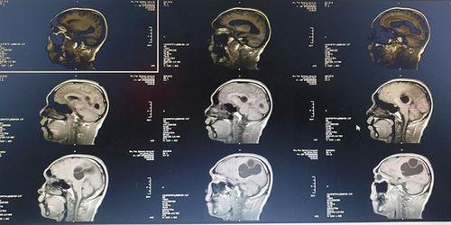 Mổ lấy ổ sán khổng lồ trong não người đàn ông thích ăn tiết canh - Ảnh 1