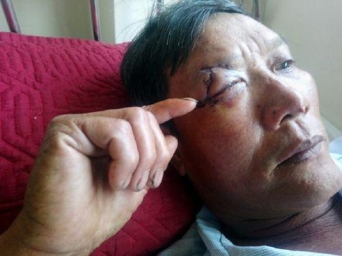 """Đuổi """"cát tặc"""" trên sông Hương, hai nông dân bị chém trọng thương - Ảnh 2"""