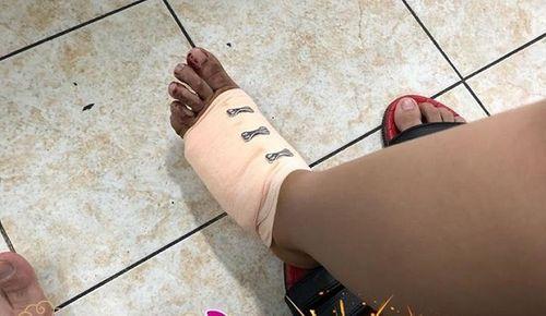Phan Mạnh Quỳnh và bạn gái gặp tai nạn khi đi chơi - Ảnh 1