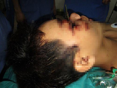 Đang làm việc, nam thanh niên bị lưỡi cưa 12cm găm sâu vào mặt - Ảnh 1