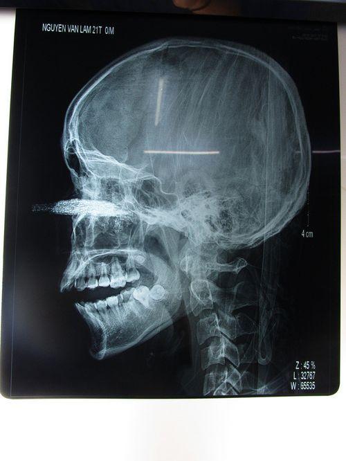 Đang làm việc, nam thanh niên bị lưỡi cưa 12cm găm sâu vào mặt - Ảnh 2
