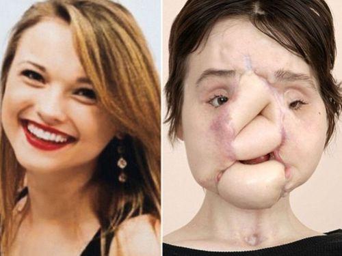 """Thiếu nữ 21 tuổi """"sống lại thêm lần nữa"""" sau 31 giờ phẫu thuật tái tạo khuôn mặt - Ảnh 1"""