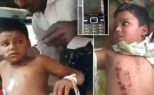 Cậu bé mất 3 ngón tay vì chơi điện thoại khi đang sạc - Ảnh 1