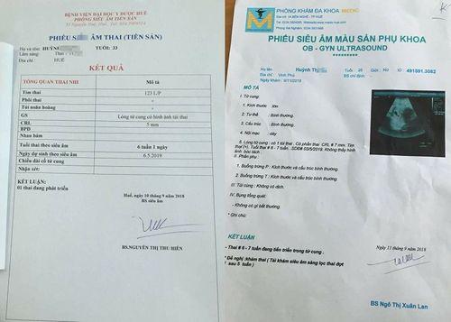 Tin tức đời sống mới nhất ngày 14/9/2018: Thai phụ suýt mất con vì bác sĩ chuẩn đoán nhầm - Ảnh 1