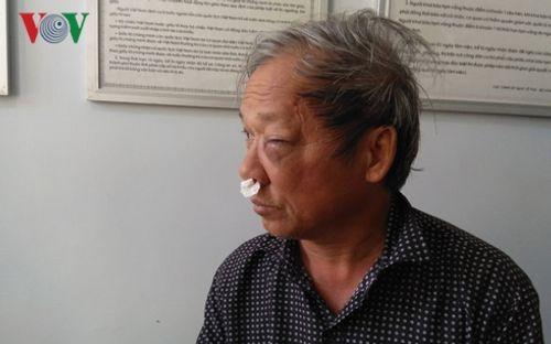 Một nhà báo bị đánh chảy máu mũi, sưng mặt khi đi ăn sáng - Ảnh 2