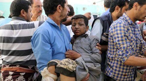 Xe buýt chở học sinh Yemen trúng tên lửa, ít nhất 43 người thiệt mạng - Ảnh 3