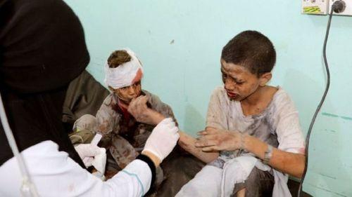 Xe buýt chở học sinh Yemen trúng tên lửa, ít nhất 43 người thiệt mạng - Ảnh 4