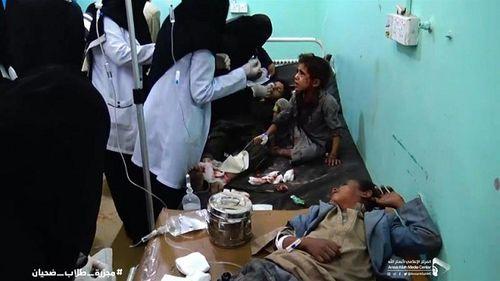 Xe buýt chở học sinh Yemen trúng tên lửa, ít nhất 43 người thiệt mạng - Ảnh 5