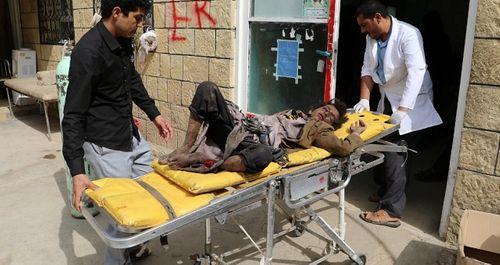 Xe buýt chở học sinh Yemen trúng tên lửa, ít nhất 43 người thiệt mạng - Ảnh 6