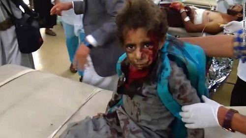 Xe buýt chở học sinh Yemen trúng tên lửa, ít nhất 43 người thiệt mạng - Ảnh 1