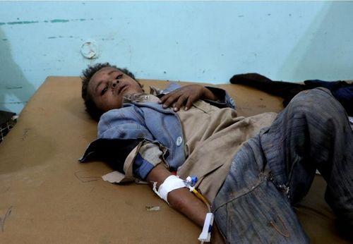 Xe buýt chở học sinh Yemen trúng tên lửa, ít nhất 43 người thiệt mạng - Ảnh 7