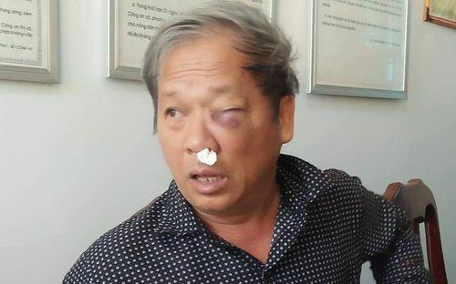 """Phóng viên VTV bị côn đồ vây đánh sau khi báo tin bắt """"đất tặc"""" - Ảnh 1"""
