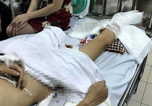 Bắt được đối tượng từng mang án giết người tham gia chém nát chân nam thanh niên ở Phú Thọ - Ảnh 2
