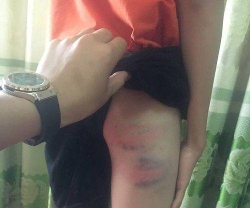 Vụ bé trai 12 tuổi bị bạo hành: Chỉ cần nhìn thấy mẹ kế là sợ hãi - Ảnh 2