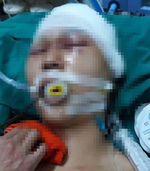 Hà Nội: Xác định nhóm đối tượng hành hung nam sinh cấp 3 đến chấn thương sọ não  - Ảnh 1