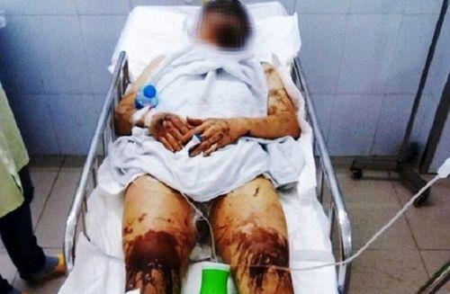 Vụ Việt kiều Canada bị tạt axit, cắt gân chân: Ám ảnh 20 giây gây án của hung thủ - Ảnh 2