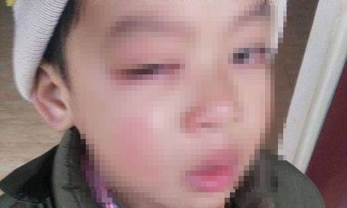 Làm rõ vụ phụ huynh tố con trai học lớp 1 bị cô giáo đánh tổn thương mắt, có nguy cơ bị mù - Ảnh 2