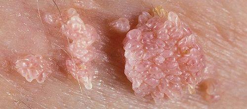 Nhiều bà bầu gặp biến chứng vì đắp lá, bôi tỏi vào ''vùng kín'' chữa sùi mào gà - Ảnh 2